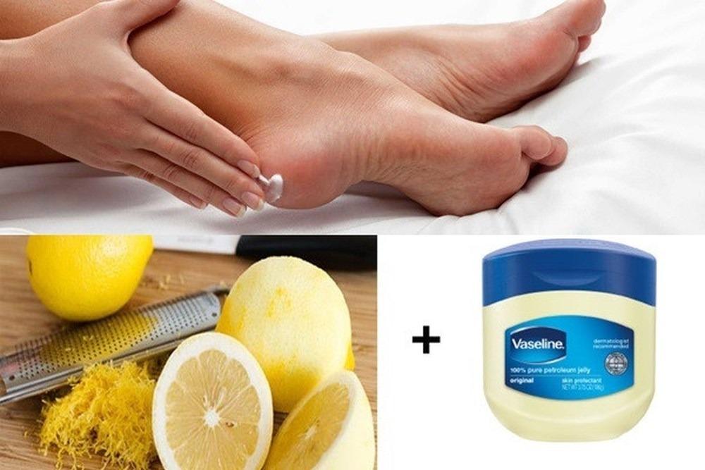 Gót chân sẽ không còn nứt nẻ và chảy máu khi áp dụng 2 nguyên liệu này