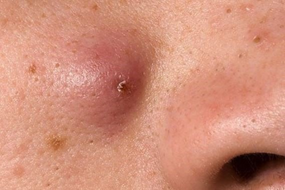5 loại mụn trên da chị em tuyệt đối không được nặn - Ảnh 1