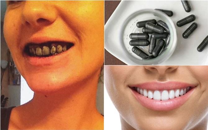 Than hoạt tính giúp loại sạch vôi răng và mảng bám, làm răng trắng sáng lên trông thấy