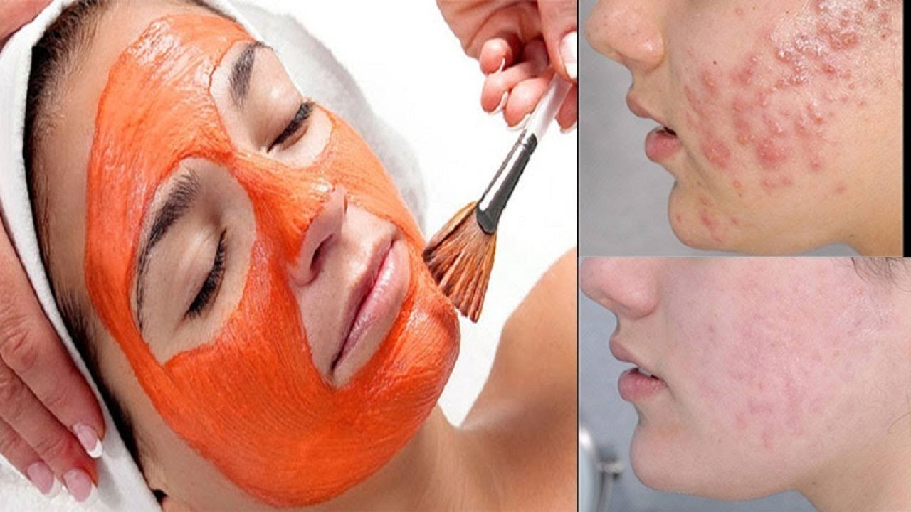 Điều trị mụn bọc bằng mặt nạ cà rốt mang lại hiệu quả bất ngờ