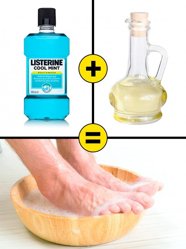 Pha nước súc miệng Listerine cùng giấm gạo và nước lần lượt theo tỷ lệ 1:1:2. Ngâm chân khoảng 15 phút và chà xát nhẹ nhàng vùng da gót chân sau đó rửa sạch, thoa kem dưỡng ẩm. Có thể thực hiện hàng ngày. Giấm gạo có khả năng làm mềm da, từ đó loại bỏ tế bào chết dễ dàng hơn. Listerine có chứa thymol và cồn có khả năng chữa nấm móng chân, nứt gót và làm dịu da.