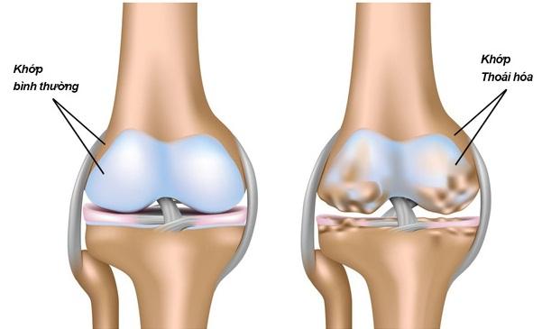 Thoái hóa xương khớp là một trong những căn bệnh phổ biến ở người già