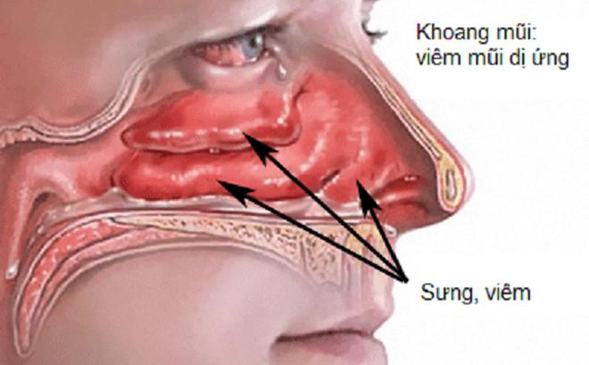 Để nhanh chóng thoát khỏi phiền toái do viêm mũi dị ứng gây ra, người bệnh phải tránh xa những món ăn dưới đây