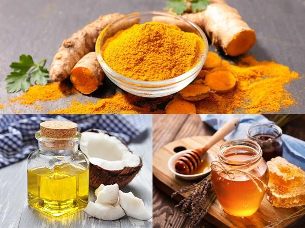 Mật ong, nghệ và dầu dừa có thể ngăn ngừa da khô và ngứa khi bị cháy nắng