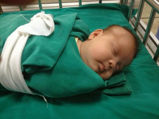 Trẻ bị hội chứng thận hư thường bị phù nề khắp cơ thể. Ảnh minh họa: Internet