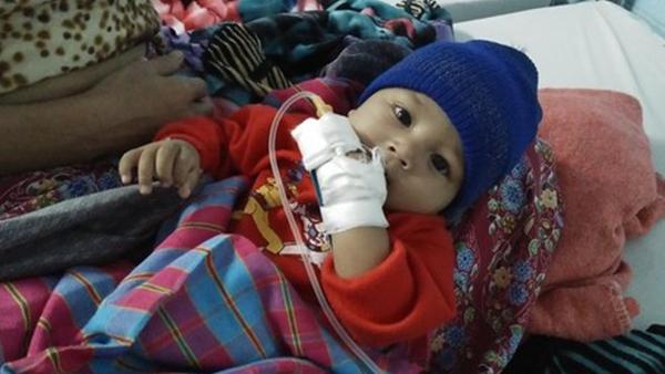 Bé 5 tháng tiểu ra máu, thận đầy sỏi do mẹ cai sữa sớm - Ảnh 1