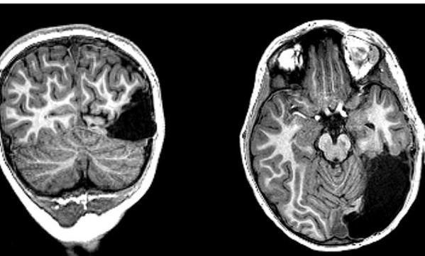 Cậu bé bị cắt một phần bộ não vẫn sống bình thường - Ảnh 1