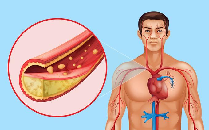 8 lợi ích với cơ thể và vóc dáng khi bạn ăn hạt lanh mỗi ngày - Ảnh 5