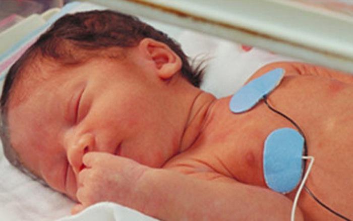 5 dị tật bẩm sinh thường gặp ở thai nhi có thể phát hiện sớm - Ảnh 2