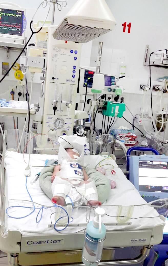 Cứu sống bé sơ sinh bị ngạt nhờ phương pháp 'làm lạnh' - Ảnh 1