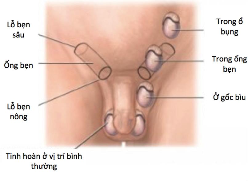 Những bệnh lý có thể gây vô sinh cho bé trai nếu không được điều trị kịp thời - Ảnh 2