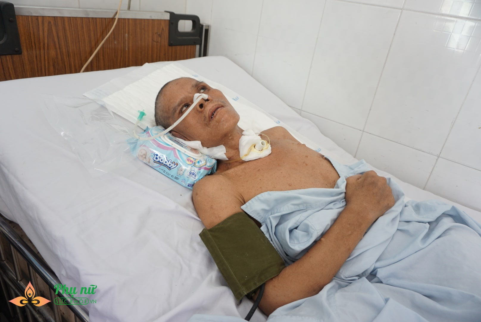 Xót cảnh nam bệnh nhân 'vô danh' nguy kịch trên giường bệnh, không một người thân chăm sóc - Ảnh 2