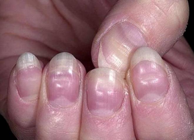 Móng tay tiết lộ tình trạng sức khỏe của bạn - Ảnh 1