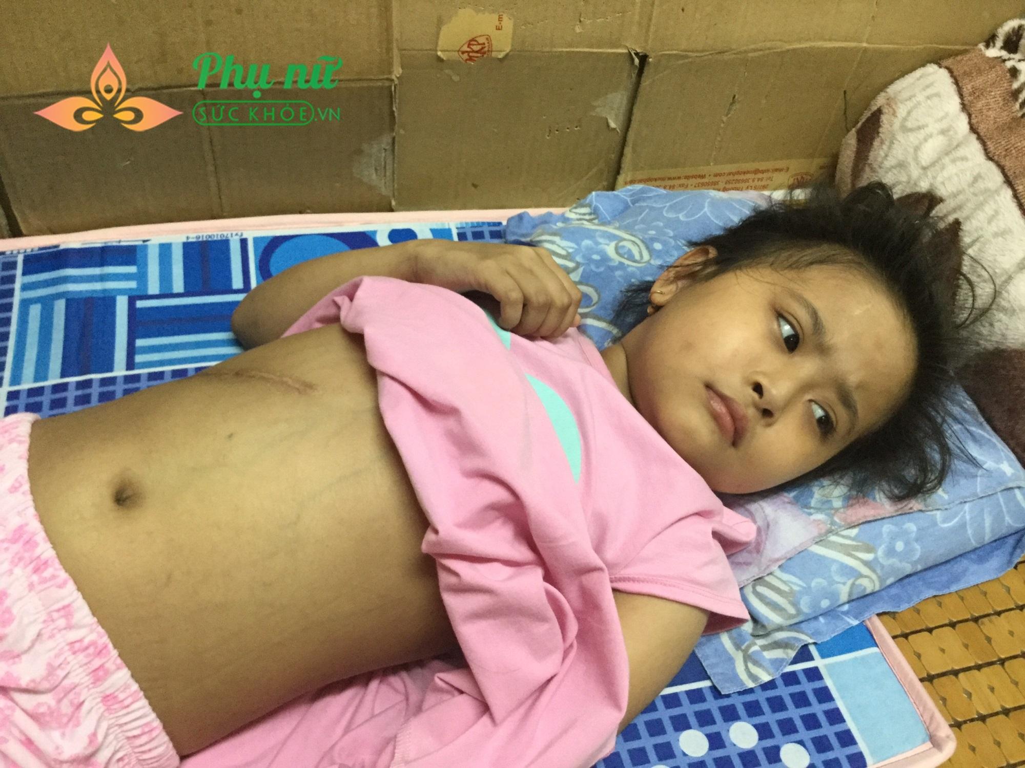 Xót cảnh bé gái bị u não ác tính, cha mẹ nghèo không tiền cứu chữa - Ảnh 1