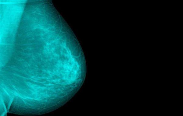 Vệt màu xanh dính trên áo tố cáo căn bệnh đáng sợ người phụ nữ đang mắc phải - Ảnh 1