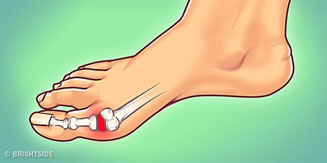 Chế độ ăn kiểm soát cơn đau cho người bệnh gout - Ảnh 1