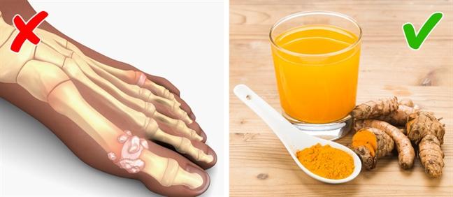 Chế độ ăn kiểm soát cơn đau cho người bệnh gout - Ảnh 5