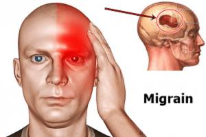 Chứng đau nửa đầu thường chỉ diễn ra một bên đầu, tuy nhiên đôi khi bạn có thể bị đau khắp người