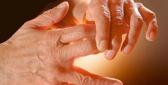 Đau nửa đầu có thể dẫn đến tình trạng ngứa ran ở tay chân