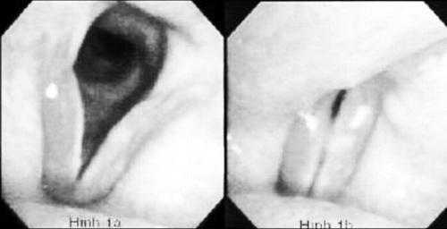 Đối phó với chứng viêm họng, viêm thanh quản ngày hè - Ảnh 1
