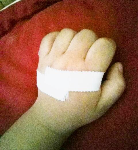 Làm gì khi trẻ bị 'ngón tay lò xo'? - Ảnh 1