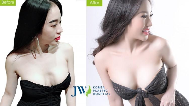 DJ Nhung Babie sở hữu vòng 1 gợi cảm sau nâng ngực nano chip 4.0