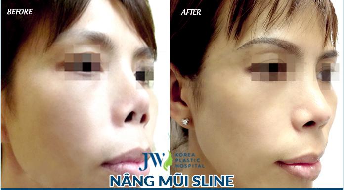Khách hàng ứng dụng công nghệ tái phẫu thuật mũi 4.0