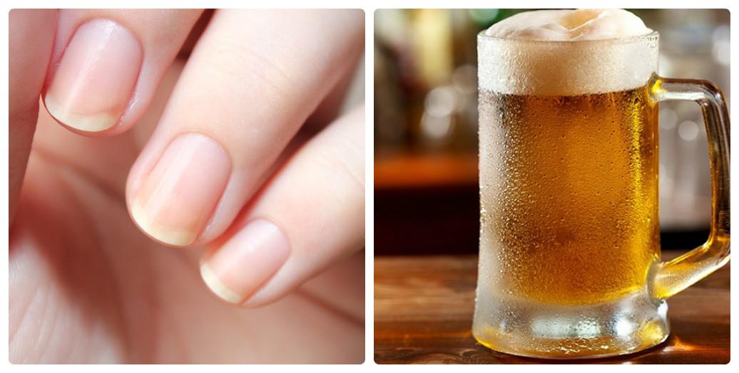 Cách chăm sóc móng tay yếu và dễ gãy đơn giản tại nhà - Ảnh 6