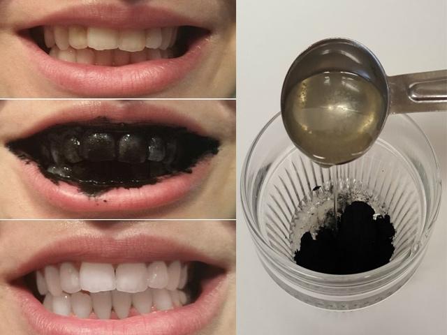 Than hoạt tính chính là là nguyên liệu vừa an toàn lại vô cùng rẻ tiền được nhiều chị em sử dụng để tẩy trắng răng
