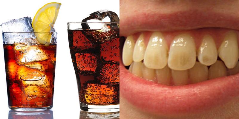 Do chứa nhiều axit, đường và phẩm màu nên nước ngọt sẽ gây tổn hại rất nhiều đến men răng của bạn