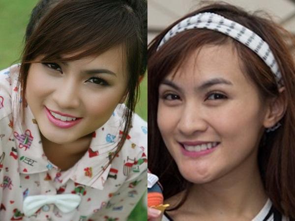 Nhiều người hâm mộ cảm thấy tiếc nuối cho nhan sắc ngọt ngào, xinh xắn trước đây của Kelly Nguyễn khi cô cố gắng khắc phục sự cố thẩm mỹ hỏng