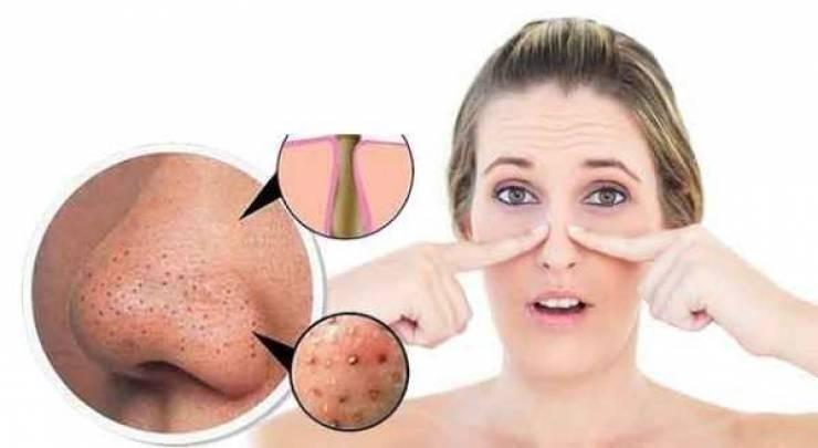 Mụn đầu đen là loại mụn nhỏ xuất hiện đốm đen ở những vùng nhiều dầu trên khuôn mặt như mũi hoặc trán