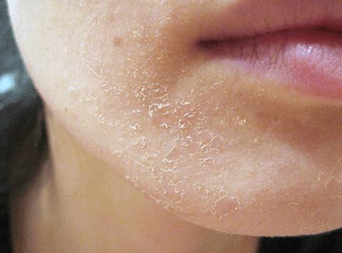 Làn da bị bong tróc là dấu hiệu chứng tỏ đang bị thiếu nước trầm trọng