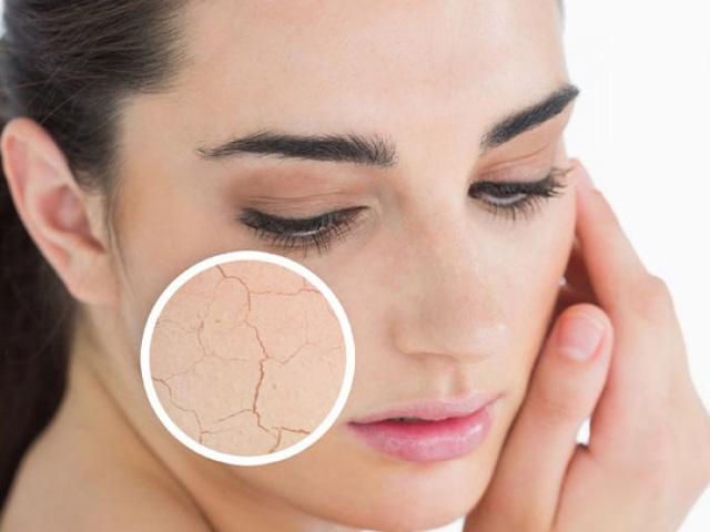 Da bị thiếu nước sẽ khiến bề mặt thô ráp, kém mịn màng