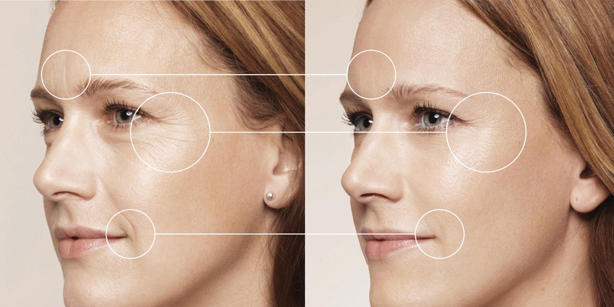 Da thiếu nước sẽ hình thành nhiều nếp nhăn ở khóe mắt và khóe miệng