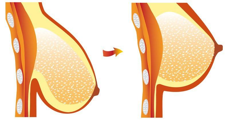 Do sinh đẻ, tuổi tác, chế độ ăn uống, luyện tập không phù hợp,... khiến vùng ngực bị chảy xệ trầm trọng