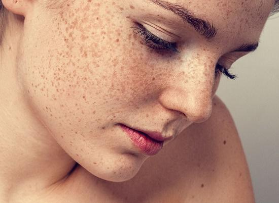 Nám và tàn nhang thường là những biểu hiện của làn da đang bị tổn thương và yếu dần