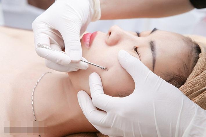 Lấy nhân mụn là một trong những phương pháp trị liệu dành cho khoảng thời gian từ 10 giờ đến 13 giờ