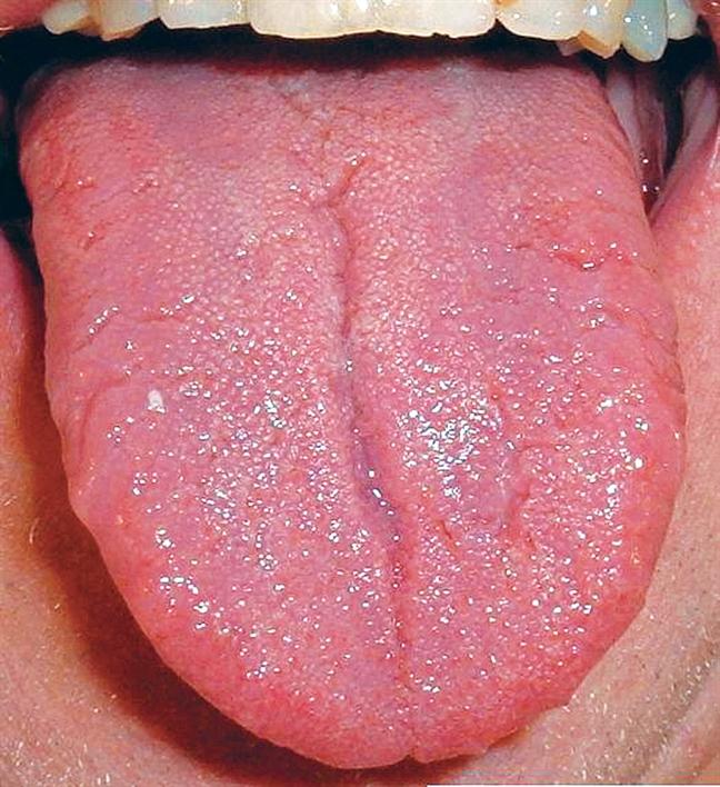 """Khi thấy lưỡi của bạn có những dấu hiệu này cần đi khám ngay lập tức kẻo """"chết đến nơi"""" - Ảnh 1"""