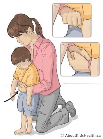 2 cách sơ cứu khi trẻ bị hóc dị vật, bố mẹ nhất định phải biết để cứu con trong tình huống khẩn cấp - Ảnh 3