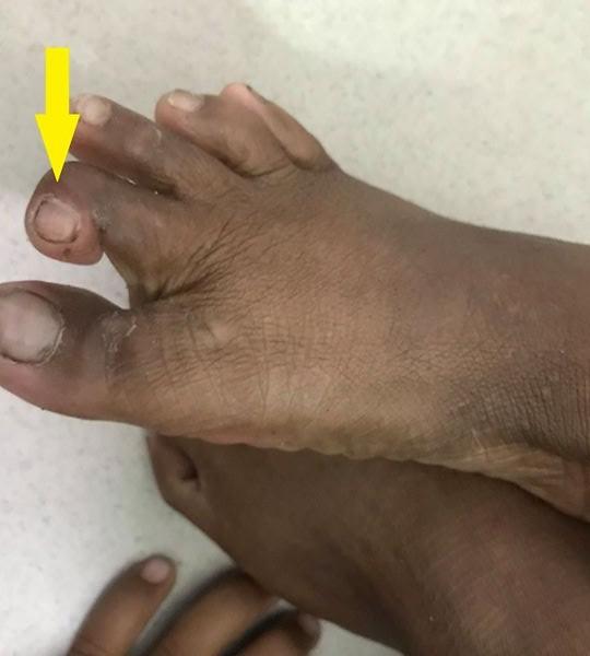 Cháu bé 7 tuổi bị rắn độc cắn không cầm được máu - Ảnh 1