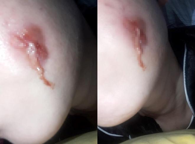 Cô gái bị nhiễm trùng vì tạo hình má lúm tại spa - Ảnh 1