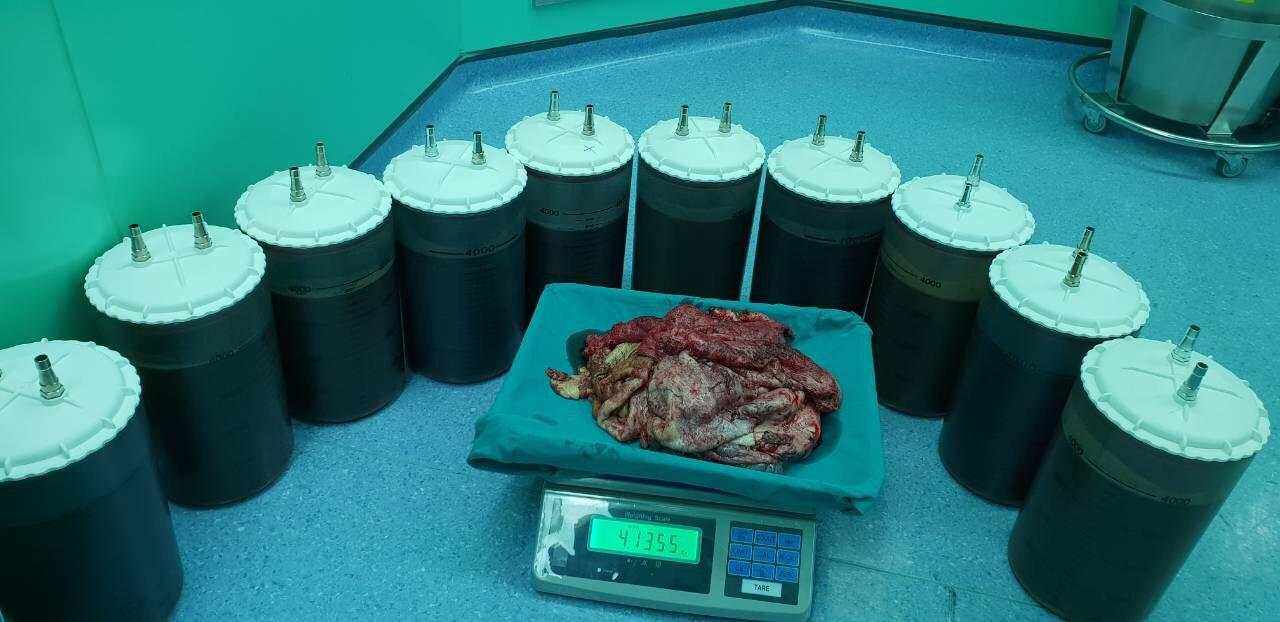 Người phụ nữ mang khối u nang buồng trứng lớn nhất Việt Nam, nặng tới 48 kg - Ảnh 3
