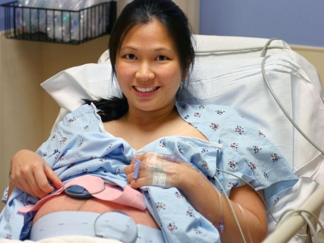 Sinh mổ tối đa được mấy lần để an toàn cho cả mẹ và bé? - Ảnh 1