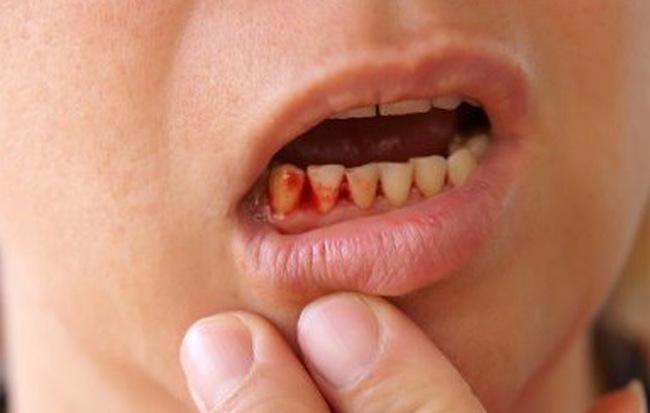 Chảy máu chân răng: Dấu hiệu bệnh ung thư nguy hiểm bạn phải biết - Ảnh 1