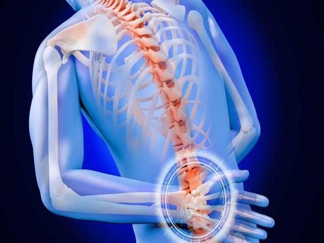 Coi chừng tàn phế vì coi thường đau lưng - Ảnh 1