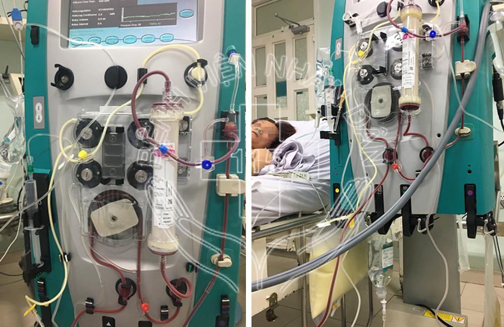 Cứu sống bệnh nhân viêm tụy cấp do tăng mỡ máu - Ảnh 1