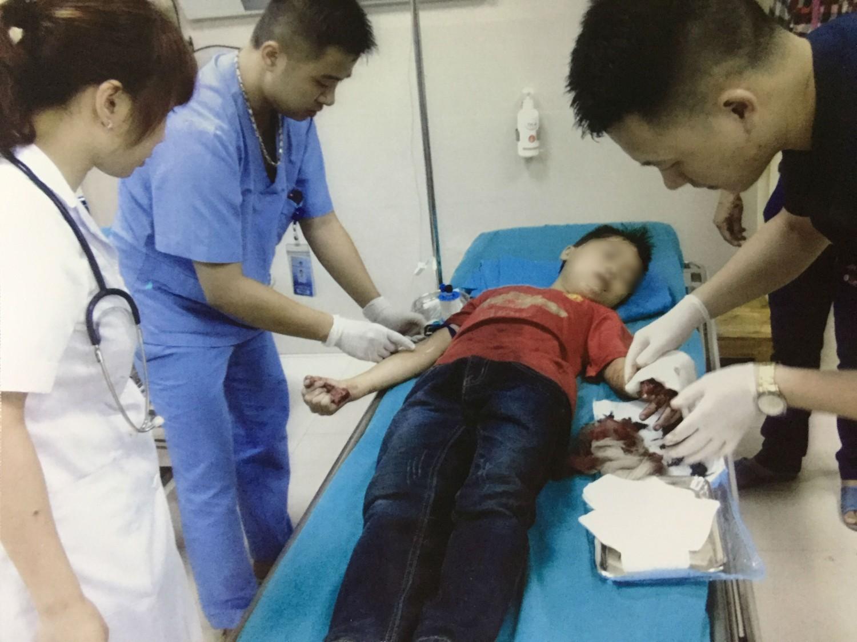 Thái rau chuối, bé trai bị đứt lìa ngón tay, nát xương mu bàn tay - Ảnh 1