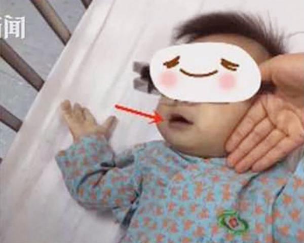Trị chứng biếng ăn bằng nước bí đao ngâm 3 năm, mẹ vô tình khiến các con phải nhập viện - Ảnh 1