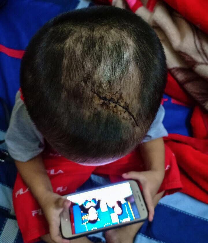 Bé 3 tuổi thương tích khắp người nghi bị người tình của mẹ bạo hành - Ảnh 1